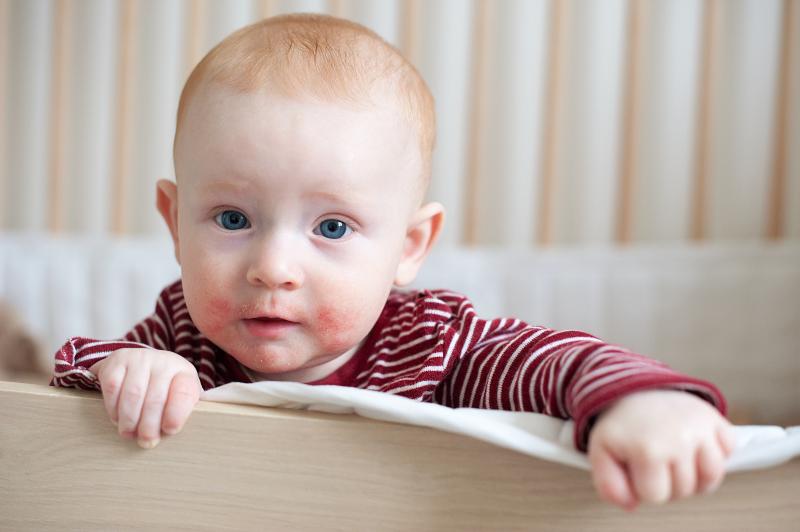 כל הדרכים למנוע אטופיק דרמטיטיס אצל ילדים ותינוקות